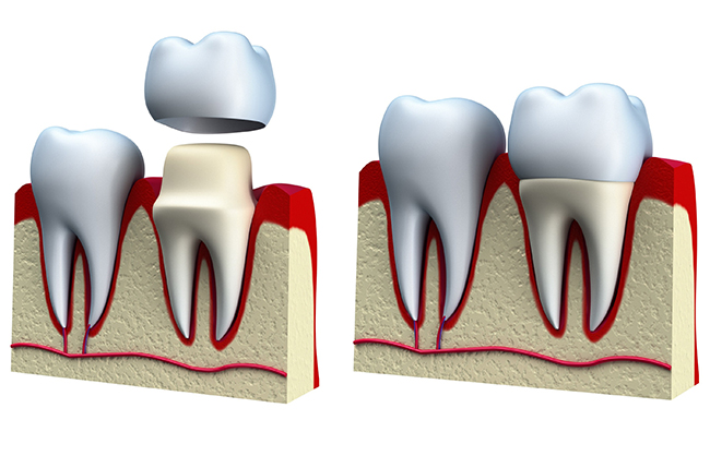 Example of how a crown fits onto a tooth.